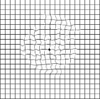 abnormal ansler grid